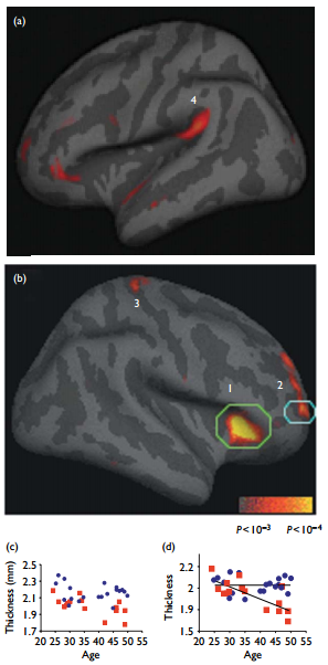 Cortical Thickening in Meditators