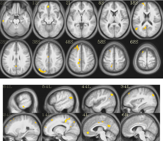 Brain Regions Activated by Seeing Words and Non-Words